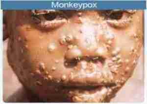 FG Confirms Six Fresh Cases of Monkeypox as Disease Hits Abuja